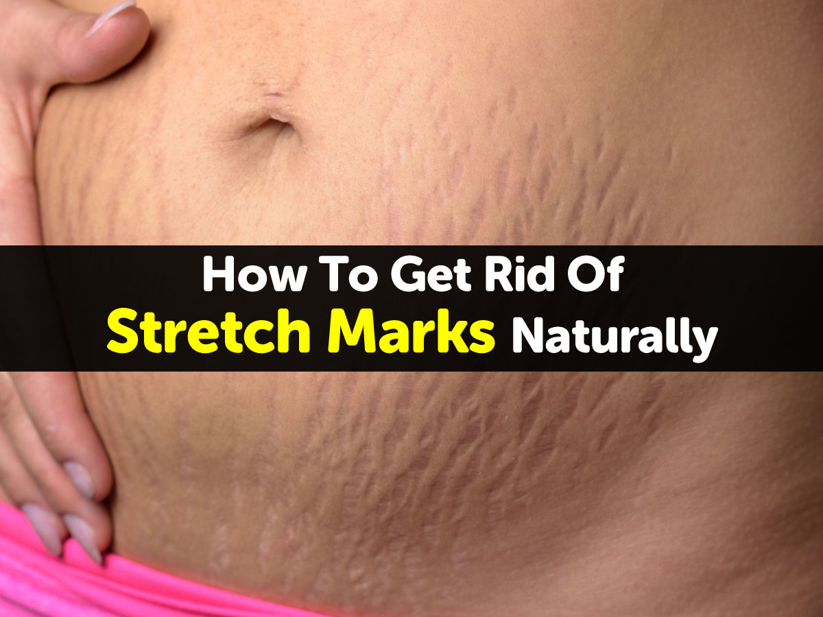 Can You Get Rid Of Stretch Marks Naturally
